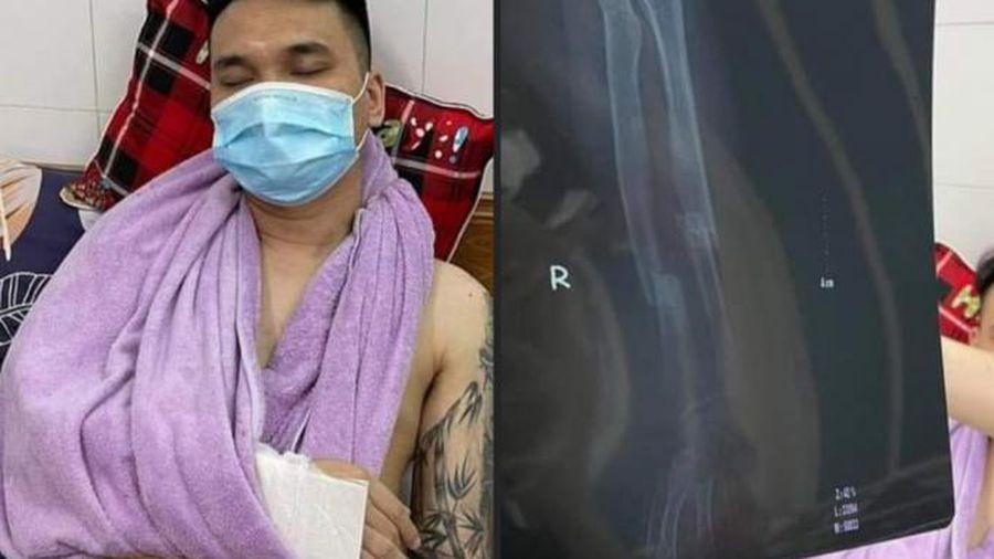 Khắc Việt chấn thương ở tay vào chiều qua